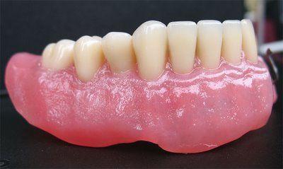 Foto 11 de Protésicos dentales en Madrid | Ángel Dueñas Laboratorio Dental