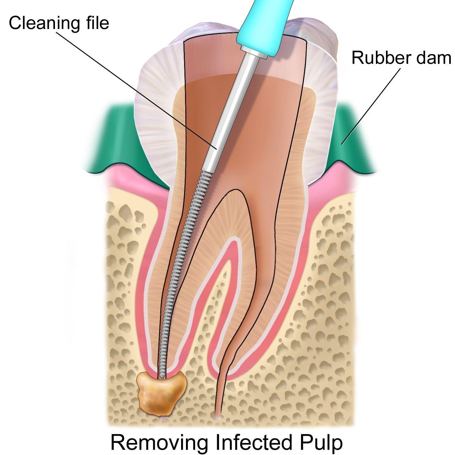 Endodoncia: Servicios de Clínica Dental Gándara