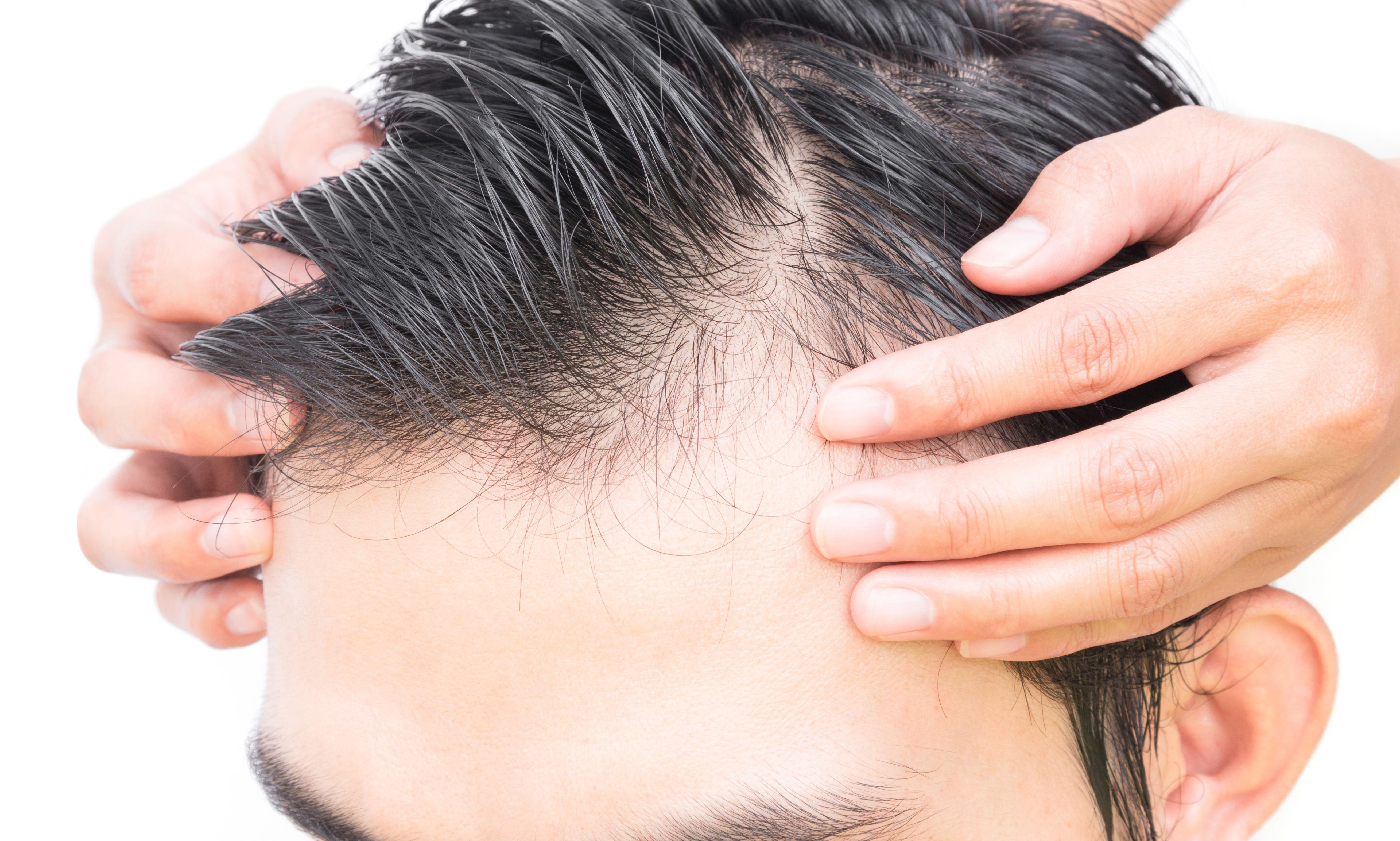 Evita la caída del cabello con nuestros tratamientos