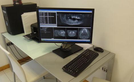 Contamos con tomógrafo axial computerizado para una exacta planificación de los implantes