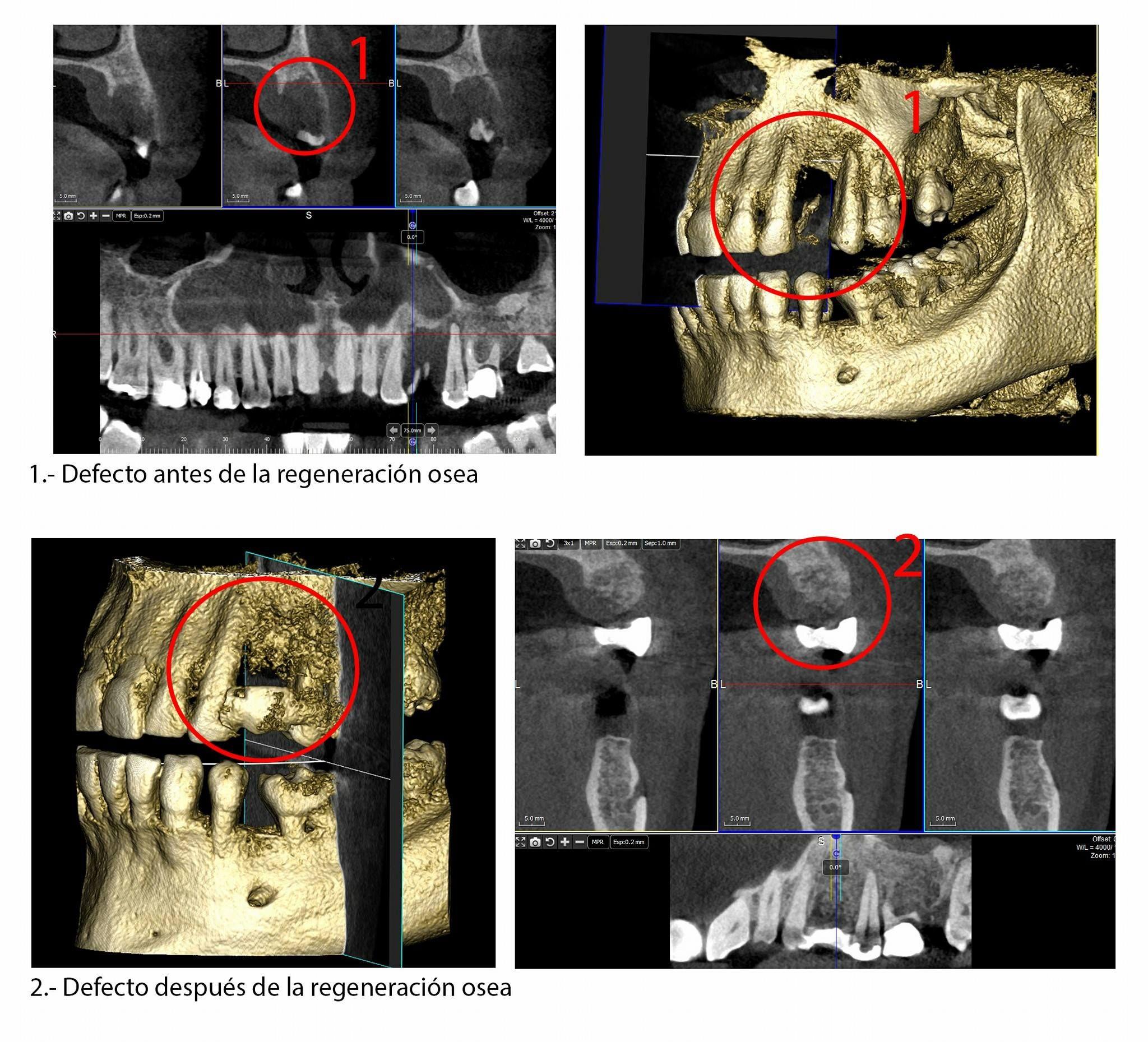 Radiografías y TACs dentales