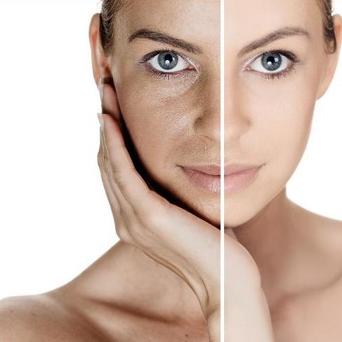 Tratamientos de rejuvenecimiento facial en Alcorcón