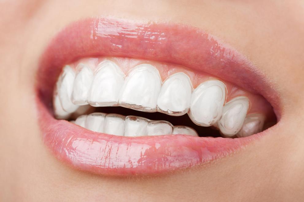 Ortodoncia invisible Invisaling®: Tratamientos de Maite Pérez Corrales
