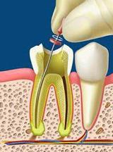 Endodoncias: Tratamientos de Maite Pérez Corrales