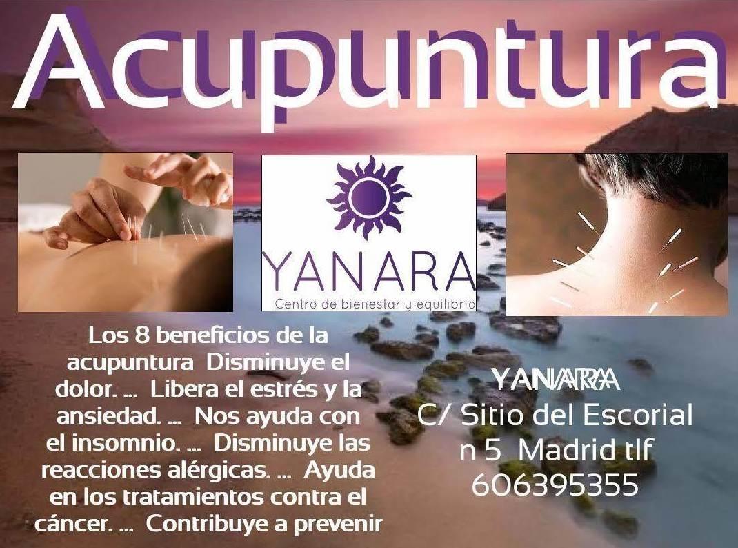 acupuntura en carabanchel, madrid