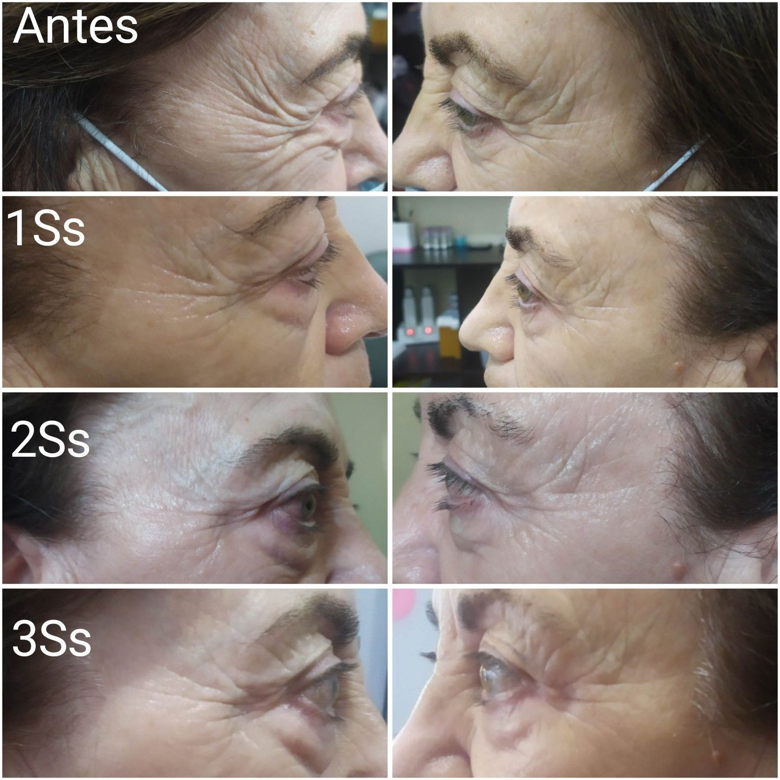 Tratamiento facial antiarrugas