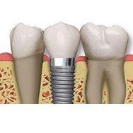 Implantología con cirugía guiada: Tratamientos dentales de Dental Arcos