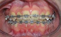 Ortodoncia para todas las edades