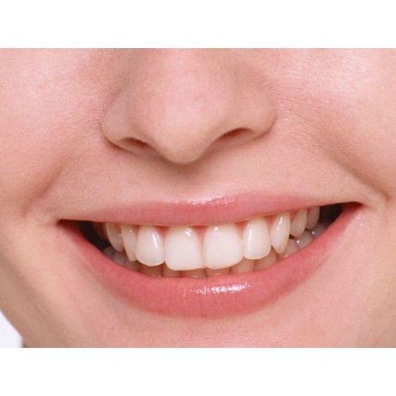 Odontología general e infantil: Tratamientos dentales de Dental Arcos