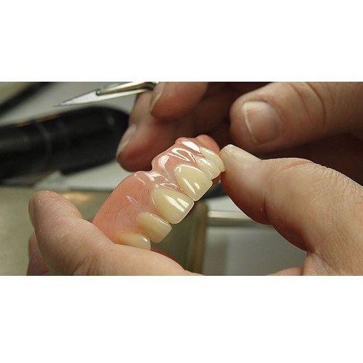 Prótesis dentales: Tratamientos dentales de Dental Arcos