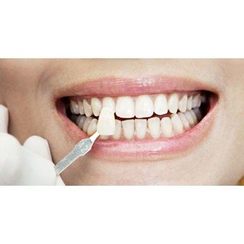 Odontología estética: Tratamientos dentales de Dental Arcos