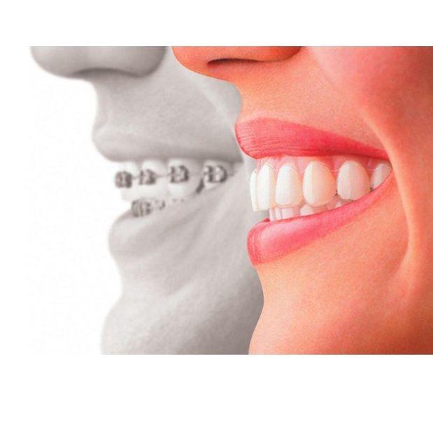 Ortodoncia: Tratamientos dentales de Dental Arcos