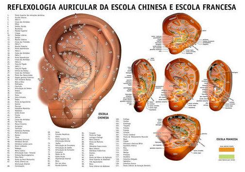 Reflexología auricular