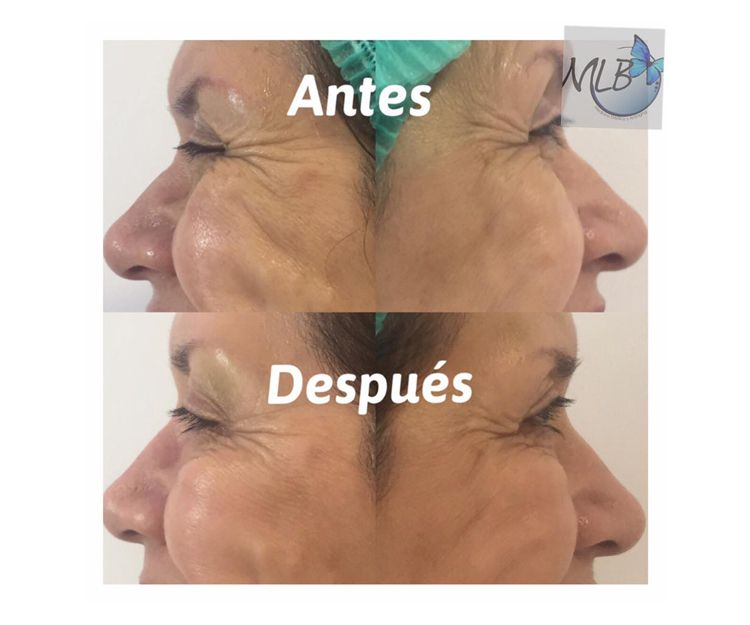 Especialista en medicina antiaging en Barcelona