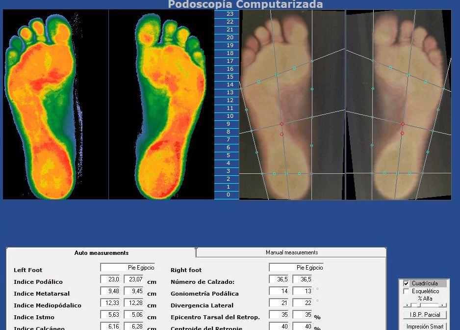 Foto 11 de Fisioterapia en Alcorcón | Centro de Salud del Pie