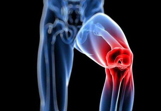 Articulaciones y deporte: evita lesiones