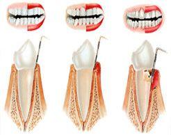 Enfermedad de las encías: Tratamientos de Centro de Especialidades Odontológicas