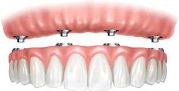 Prótesis: Tratamientos de Centro de Especialidades Odontológicas
