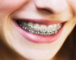 Ortodoncia: Tratamientos de Centro de Especialidades Odontológicas
