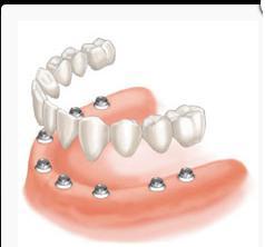 Prótesis dental: Servicios de Clínica Dental Safident