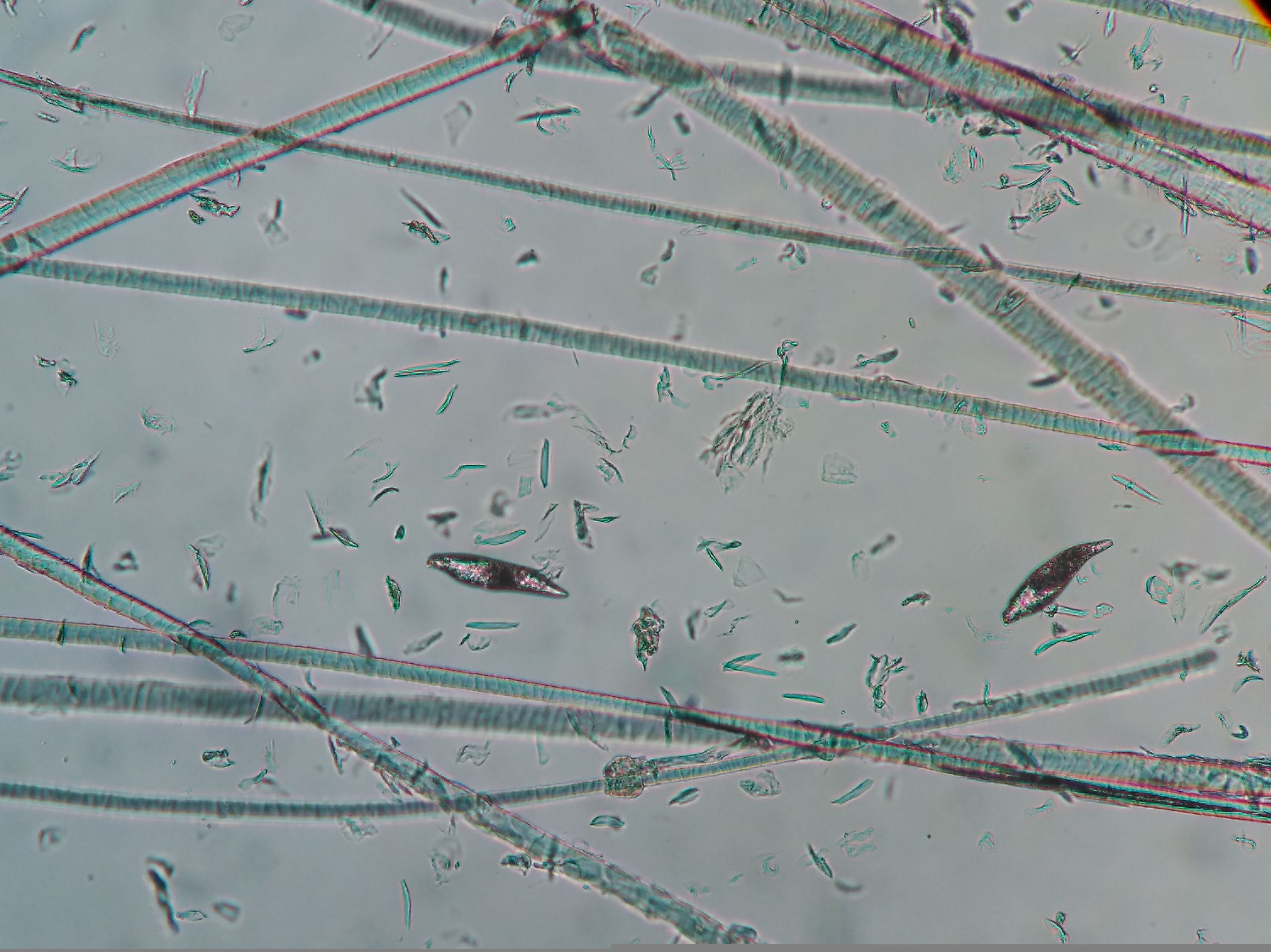 Larvas de demodex