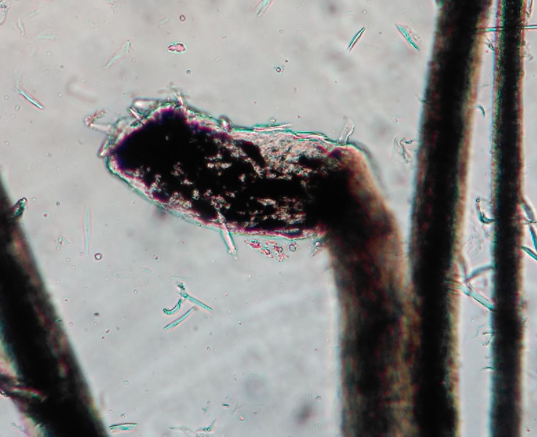 Incontinencia pigmentaria, macromelanosomas en displasia folicular con dilución del color