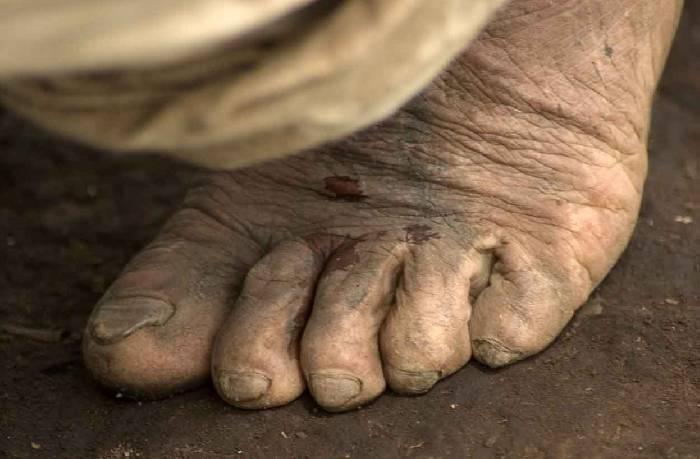 PODOLOGÍA GERIÁTRICA : TRATAMIENTOS-ESPECIALIDADES de Alper Podólogos Clínica Podológica